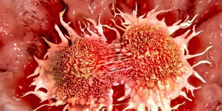 آمار عجیب از افزایش سرطان روده در جوانان