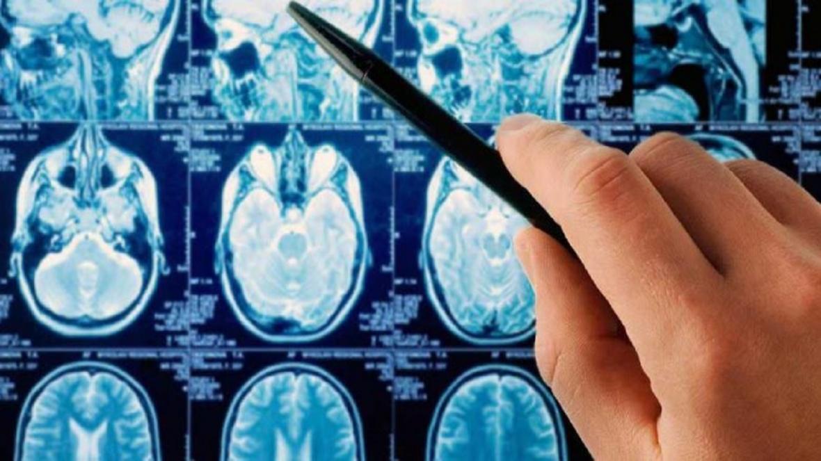 آسان ترین روش تشخیص مرگبارترین سرطان