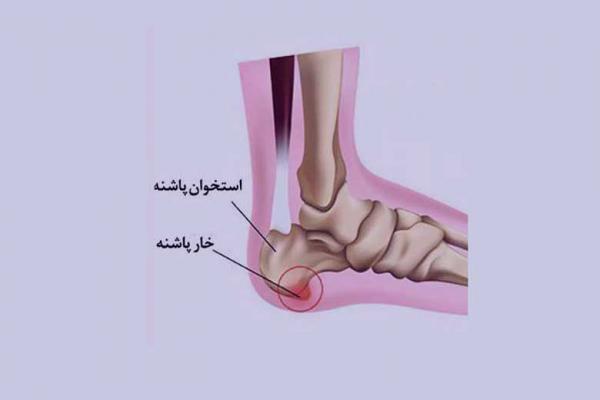 دردی تیز و تیرکشنده در پاشنه پا
